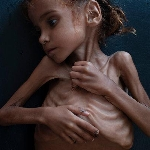 FAMINE IN YEMEN profile picture